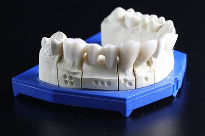 endodontie_2
